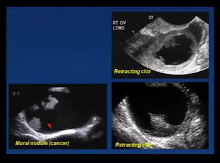 ovarian cyst cancer