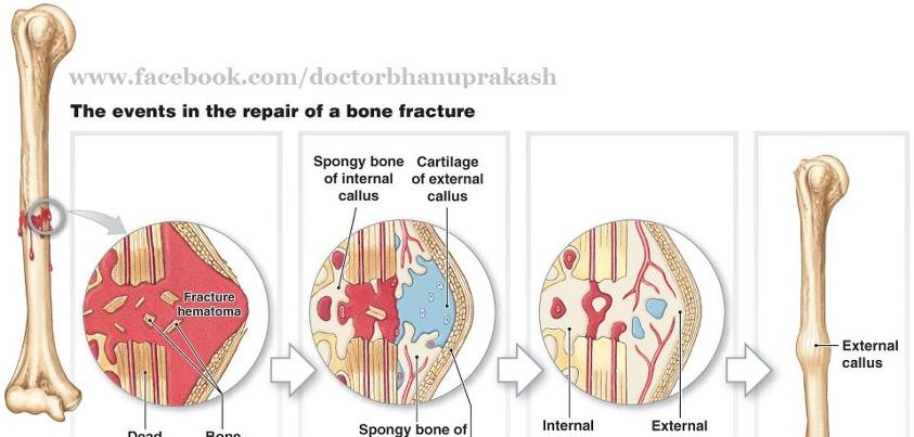 Fracture types: