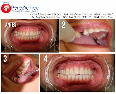 http://www.dentalperezyance.com/