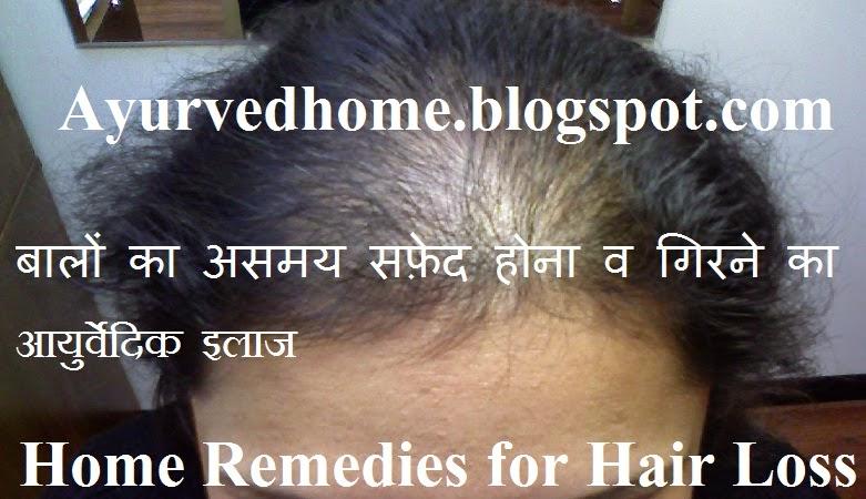 Home Remedies for Hair Loss and Dandruff  बालों का असमय सफ़ेद होना रुसी  व गिरने का आयुर्वेदिक उपाए  Baal Jhadne Girne Rusi or Safed Hone Par Ayurvidc Illaj , Baal Jhadne Girne Rusi, Dandruff, Head Rusi, Home Remedies for Hair Loss, Premature graying of hair, hair loss treatment in hindi, hair problems and ayurvedic solution in hindi ,