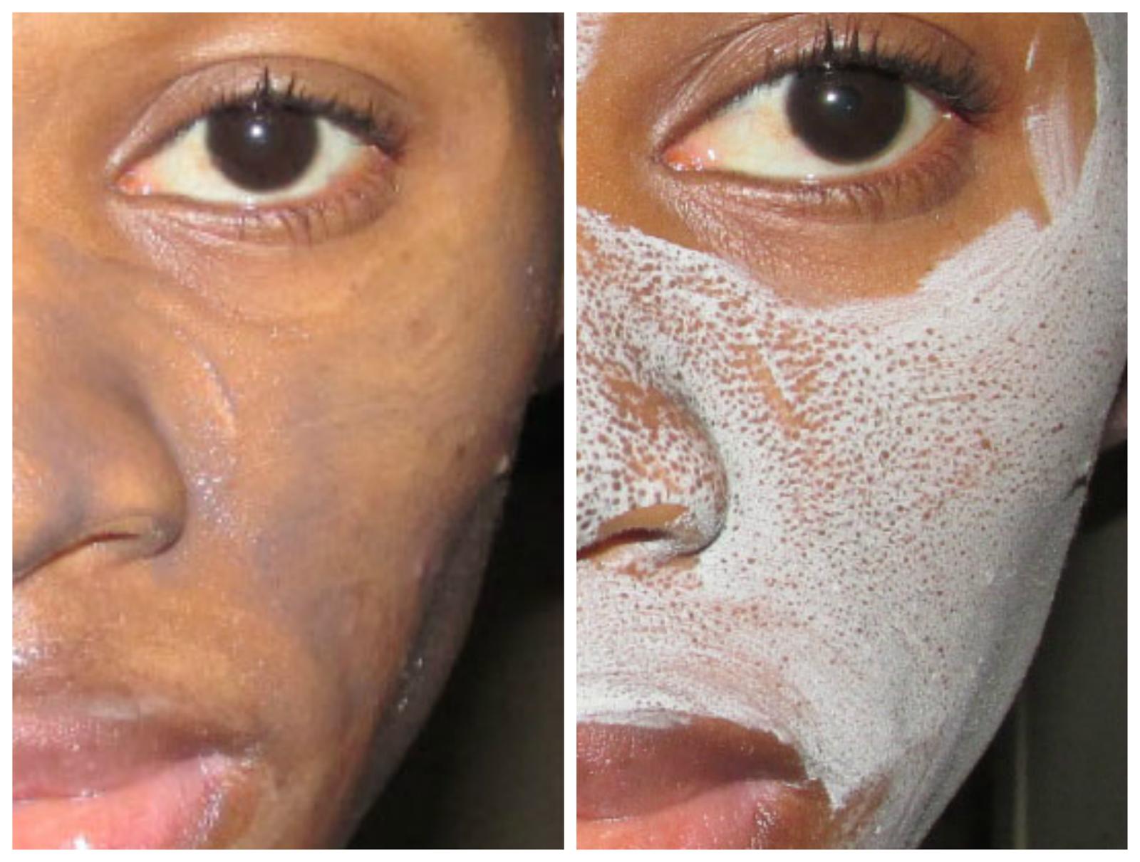 Le peeling profond des acnés