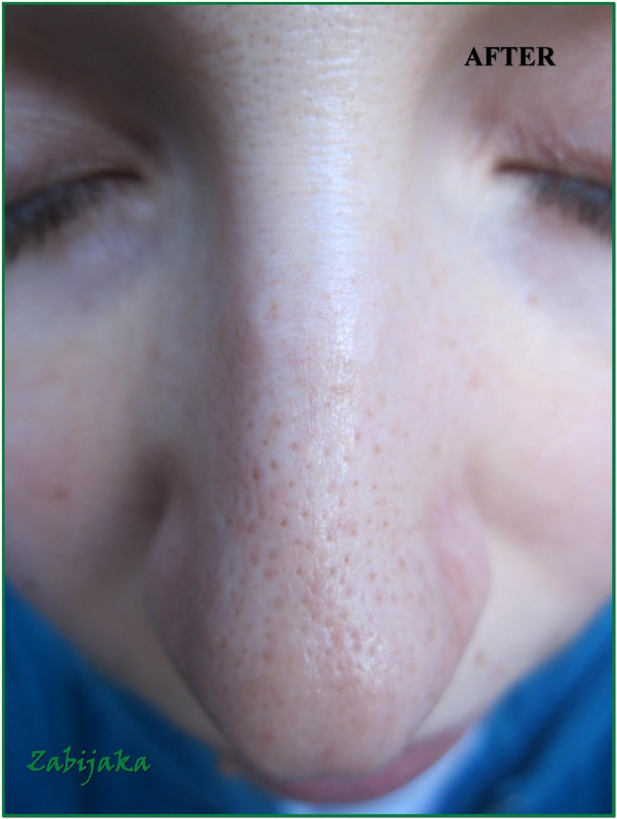 Черные точки на лице (комедоны) причины и избавление в 92