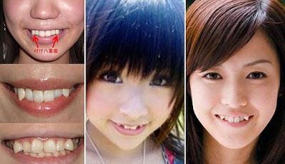 Gigi taring berlapis jadi kegilaan wanita Jepun