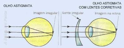 Esquema da Formação da imagem em um olho astigmata. A imagem fica irregular na retina. É necessário o uso de lentes irregulares para compensar a curvatura irregular do olho.
