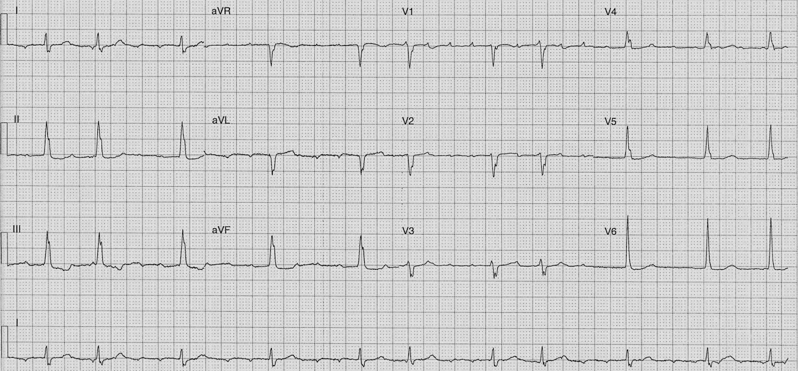Atrial Fibrillation Rhythm Control