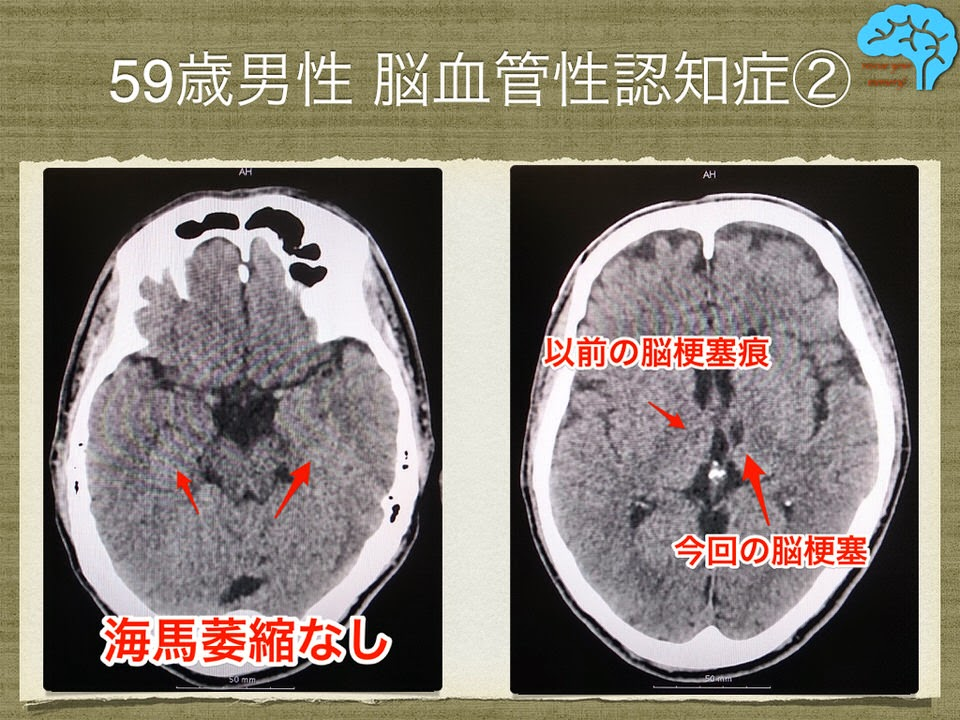 両側視床梗塞