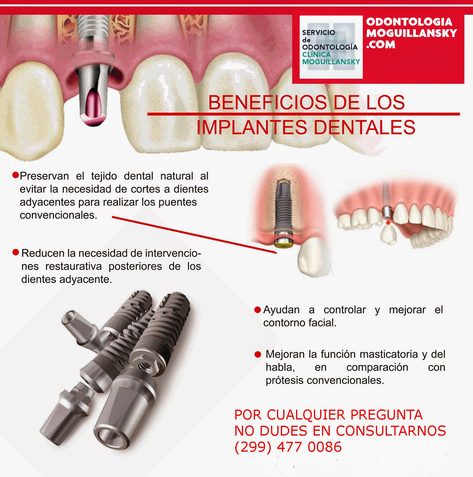 beneficio implantes dentales argentina
