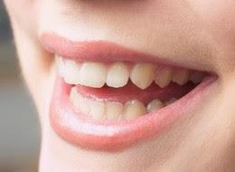 7 Natural Teeth Whitening Tips