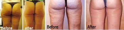 Mesoterapia antes y después