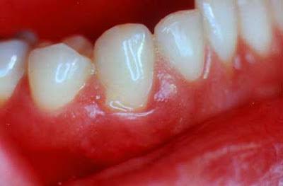 diş eti kanamasının nedenleri, diş eti kanamasının sebebi