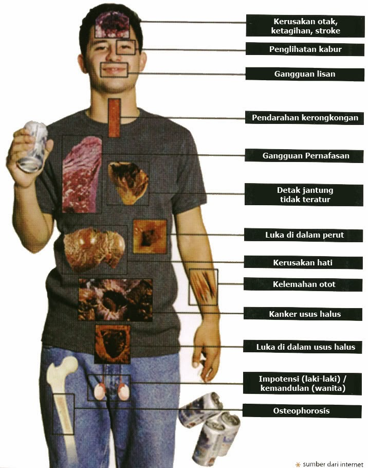 Bahaya Dan Dampak Ekonomi Dari Mengkonsumsi Minuman Beralkohol