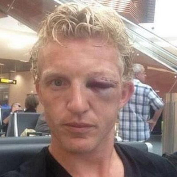 This is Dirk Kuyt's face after the training incident with Dutch teammate Jonathan de Guzmán