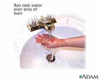 First aid for fire accident skin burn | apply water on skin | cool burning skin | தீ விபத்து முதலுதவி