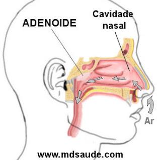 Localização das adenoides