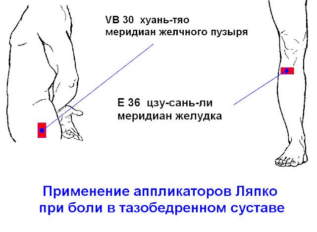 Боль в тазобедренном суставе отдает в ногу как лечить