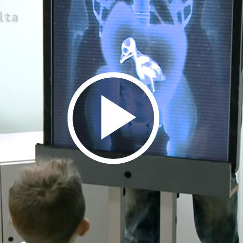 #Vídeos El paciente tiene un pollito en el estómago