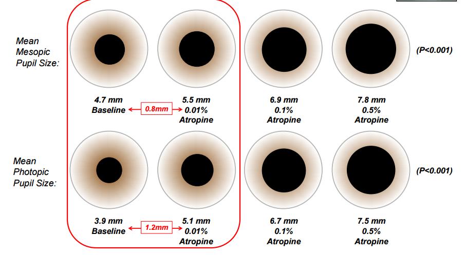 Atropine And Myopia Control The ATOM 2 Study