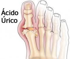 acido urico 5.3 que no debe comer con acido urico alto que no se debe comer teniendo acido urico