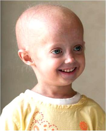 Progeria term paper
