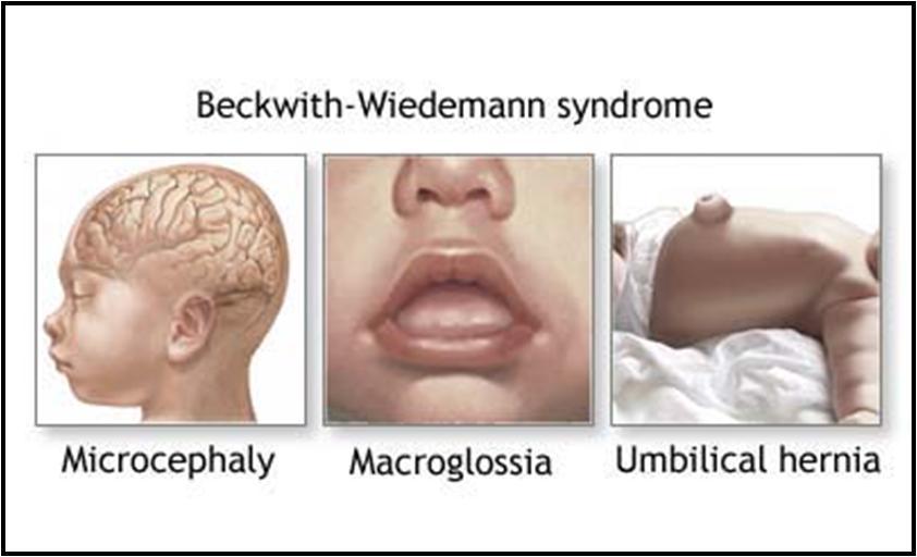 Beckwith-Wiedemann Syndrome