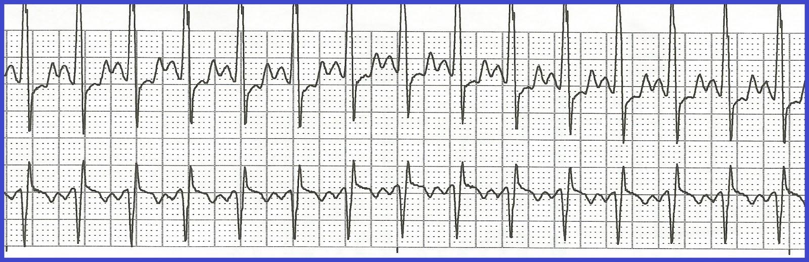 Multifocal Atrial Tachycardia Multifocal atrial tachycardiaParoxysmal Atrial Tachycardia Vs Sinus Tachycardia