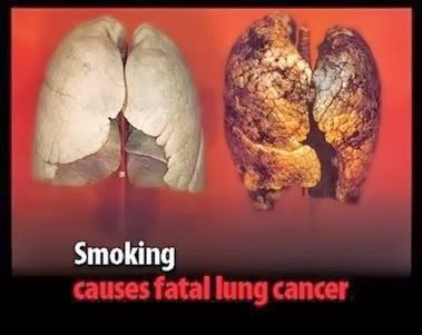 Efek Negatif Nikotin Pada Paru-Paru