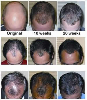 Hair Loss Treatment For Men – Top Tips For Healthy Hair Growth