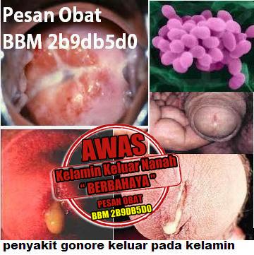Obat Sipilis CV De Nature Indonesia