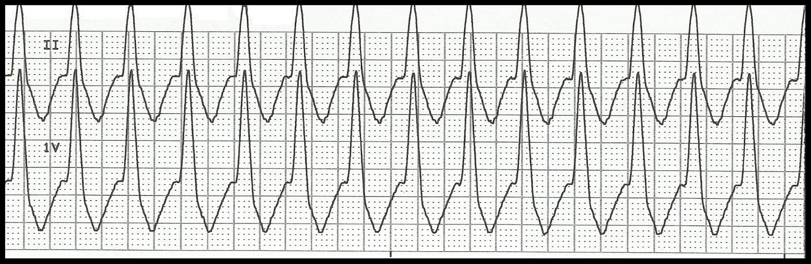 Float Nurse: EKG Rhythm Strip Quiz 151 Ventricular Tachycardia Rhythm Strip