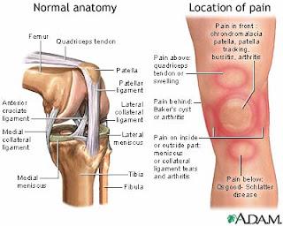 sakit lutut, cara mengatasi sakit lutut, petua cara msalah sakit lutut
