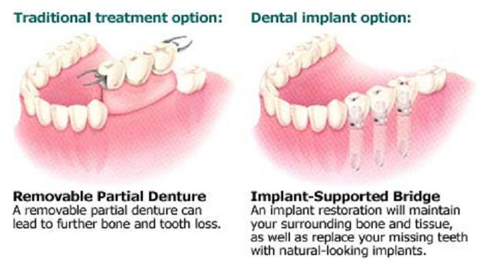 Image result for Bridges vs dental implant\