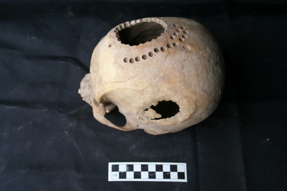 Ancient cranial surgery in Peru investigated