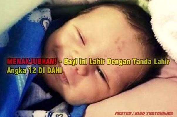MENAKJUBKAN Bayi ini Lahir Dengan Tanda Lahir Angka 12 DI DAHI 3 GAMBAR