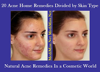 20 Acne Home Remedies Divided by Skin Type - Natural Acne Remedies In a Cosmetic World