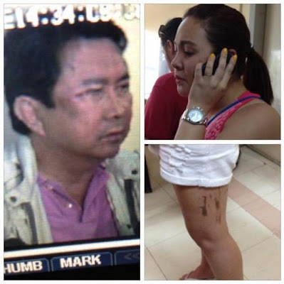 Mon Tulfo and Raymart Santiago Fight, Claudine and Mon Bruised