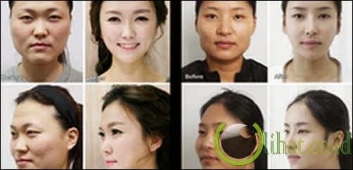 Operasi Plastik Korea Selatan