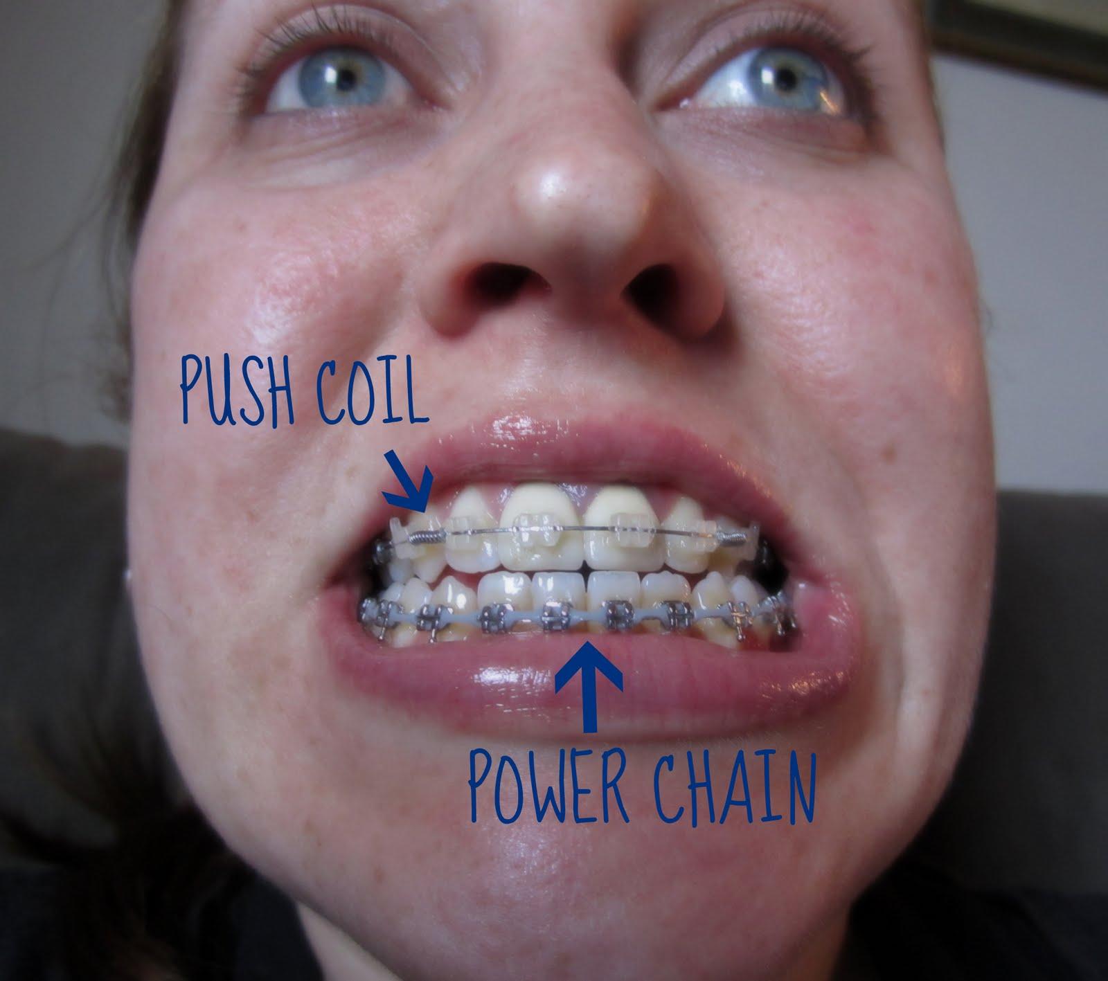 Wired jaw recipe on jaw clutch, jaw parts, jaw socket, jaw surgery procedures, jaw splint, jaw wired shut, jaw diagram, jaw suspension,
