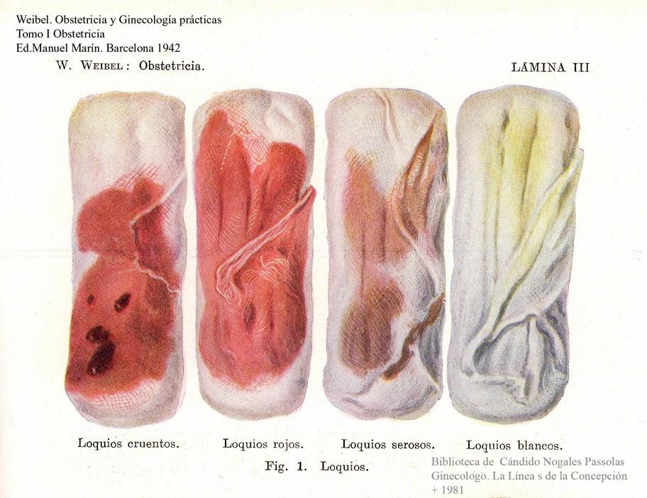 Causas de flujo de color marrn o flujo vaginal con sangre