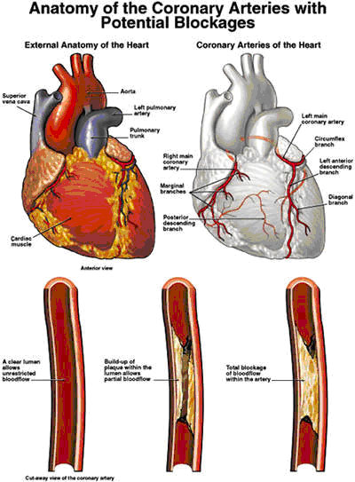 Telugu web world 032413 they could be the result of a choked artery even if heart attack is not the result a check up should definitely not be avoided take care ccuart Gallery