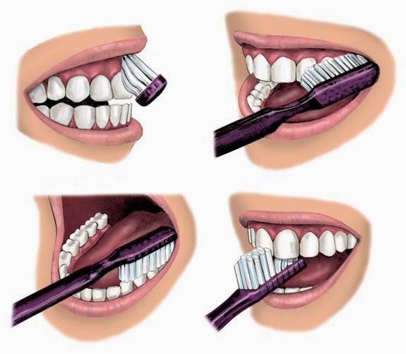 Préférence Comment se brosser les dents après canal radiculaire | soins dentaires CY65