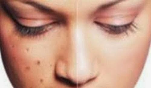 Cara Menghilangkan Flek Hitam di wajah