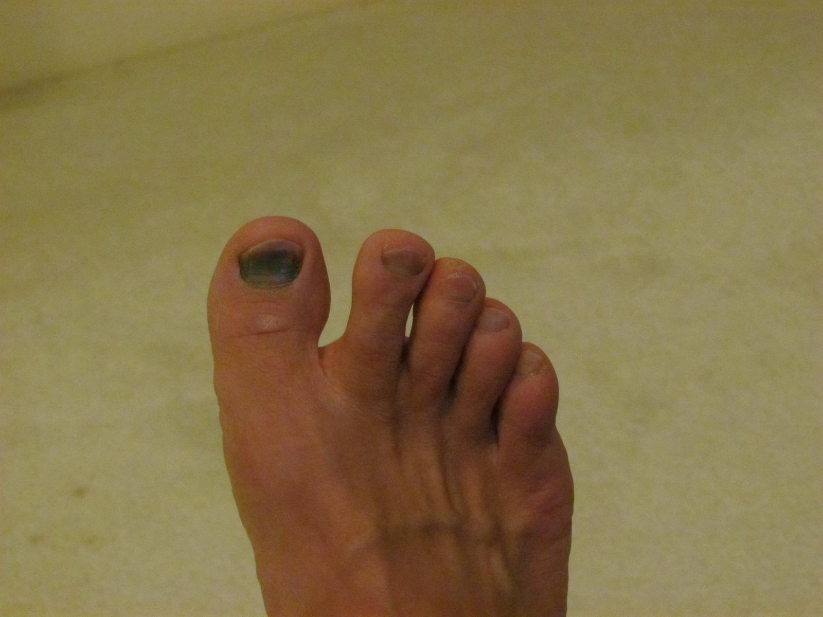 Bruise Under the Big Toenail Treatment