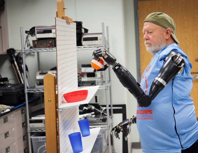 This Man Lived Without Arms For 40 Years, And Now He Has New Ones