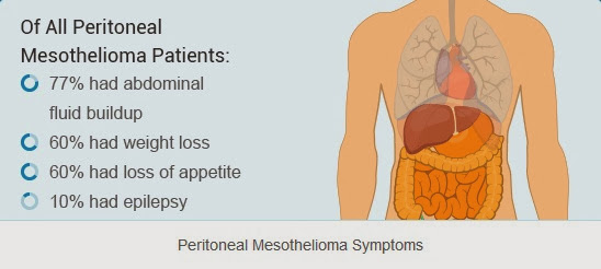 Peritoneal Mesothelioma Symptoms