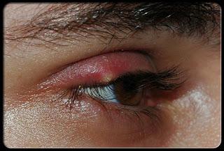 forunculo en el ojo