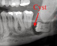أكياس الأسنان المرضية