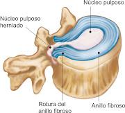 La herniación de un disco vertebral lumbar puede dar lugar a dolor de .