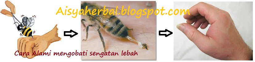 cara tradisional mengobati sengatan lebah