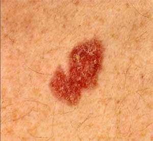 White Warts On Legs