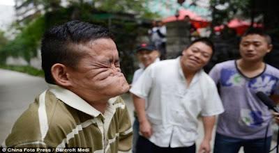 Pria Ini Bisa Melipat Wajahnya Sampai Hidung Masuk Ke Mulut [ www.BlogApaAja.com ]